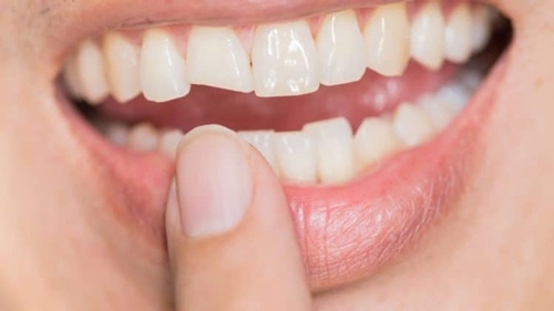 dán veneer răng webtretho