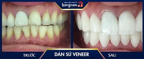 dán răng veneer