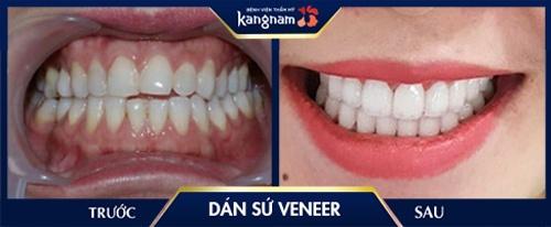 dán răng sứ không mài răng
