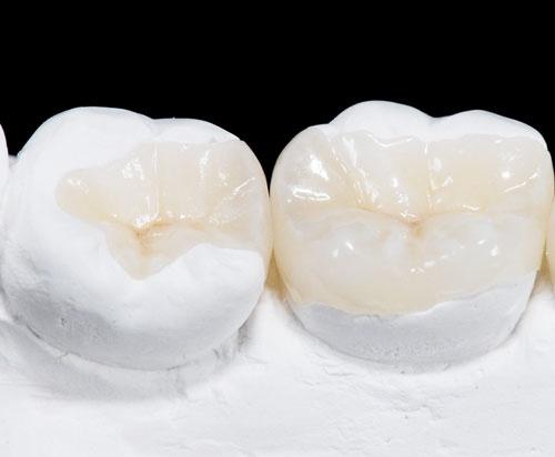 giá trám răng inlay onlay
