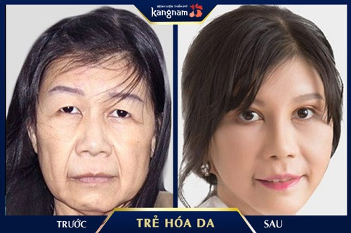 giá trẻ hoá da mặt