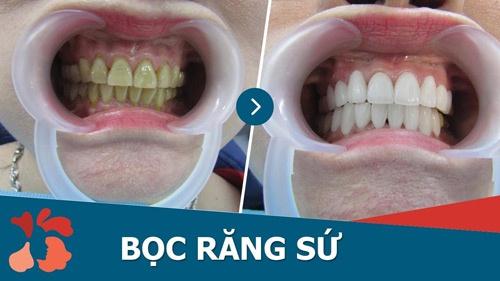 tác hại bọc răng sứ
