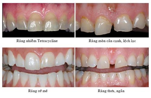 hậu quả của bọc răng sứ