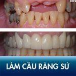 Làm cầu răng sứ có đau không? Làm cầu răng sứ ở đâu tốt, không đau?