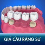 Làm cầu răng sứ giá bao nhiêu tiền? Bảng Chi phí Bắc cầu răng rẻ nhất tại Kangnam