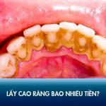 Chi phí lấy cao răng bao nhiêu tiền hiện nay? Có nên cạo vôi răng 0 đồng không?