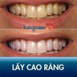 Lấy cao răng có đau không? Hướng dẫn giảm ê buốt sau cạo vôi nhanh nhất