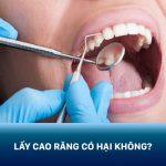 Chuyên gia giải đáp: Lấy cao răng có hại không? Có ảnh hưởng đến men răng không?