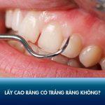 Lấy cao răng có trắng răng không? Chuyên gia giải đáp