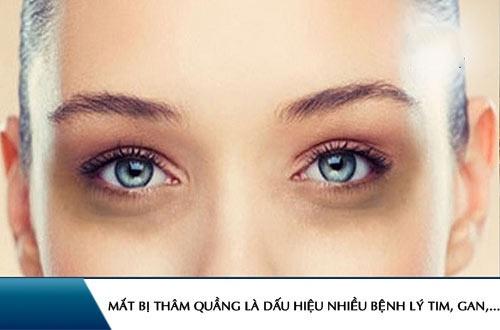 mắt thâm quầng là bệnh gì