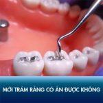 Mới trám răng có ăn được không? Những lưu ý giúp duy trì kết quả lâu dài!