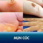 Triệu chứng mụn cóc là gì? Nguyên nhân và cách điều trị dứt điểm