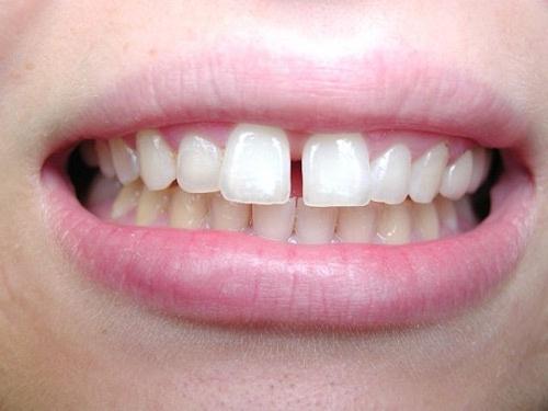 người răng thưa
