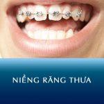 Niềng răng thưa Kangnam – Chỉnh hình răng đều khít, rút ngắn thời gian niềng