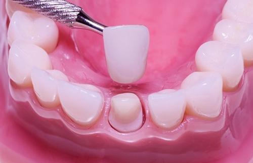 thay răng sứ