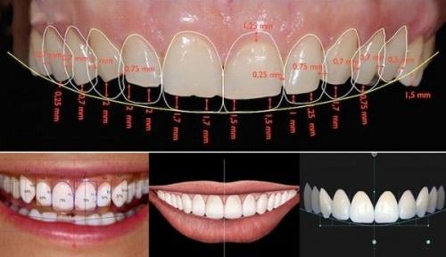 bọc răng