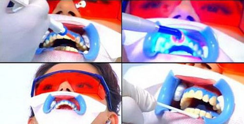 quy trình tẩy trắng răng