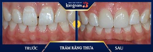 răng cửa thưa và cách khắc phục
