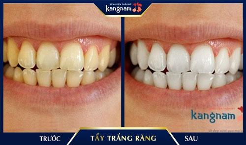 răng trắng bóng trong 5 phút