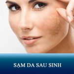 Nguyên nhân – Triệu chứng – Cách điều trị sạm da sau sinh NGĂN NGỪA TÁI PHÁT