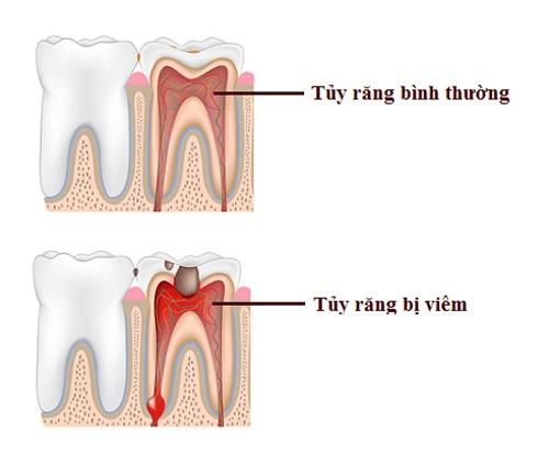 tác hại của việc bọc răng sứ