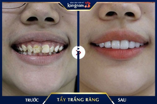 tẩy trắng răng nha khoa