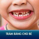 Trám răng cho bé có đau không? Nên trám răng cho bé ở đâu an toàn, hiệu quả!