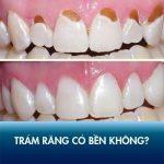 Trám răng thẩm mỹ có bền không? Các yếu tố quyết định trám răng được bao lâu!