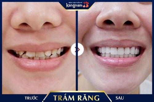 hàn răng sau bao lâu thì được ăn