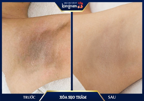 trị sẹo thâm ở chân bằng laser