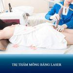 Trị thâm mông bằng laser – Tạm biệt vòng 3 THÂM TÍM – SẦN SÙI!