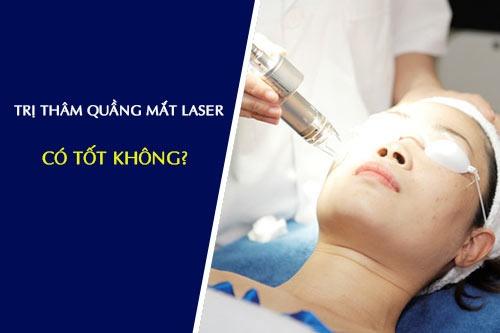 trị thâm quầng mắt bằng laser