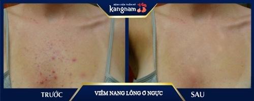 trị viêm nang lông ở ngực