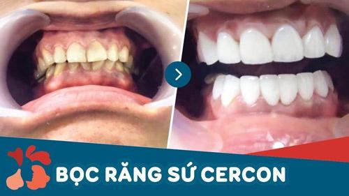 trồng răng sứ có đau không