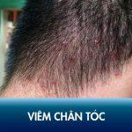 Viêm chân tóc là bệnh gì? Nguyên nhân và cách điều trị dứt điểm