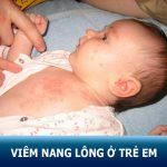 Viêm nang lông ở trẻ em: Nguyên nhân – triệu chứng và cách điều trị an toàn