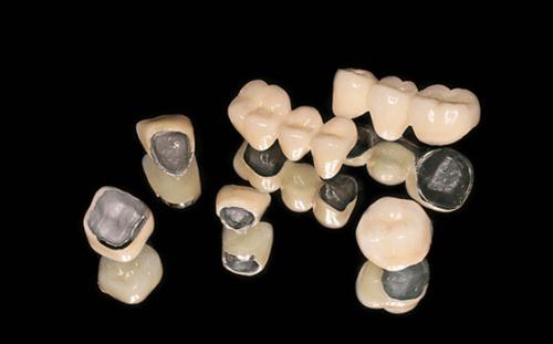bọc răng kim loại