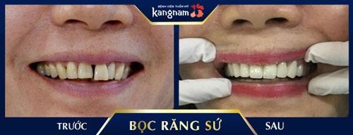 bảng giá răng sứ cercon