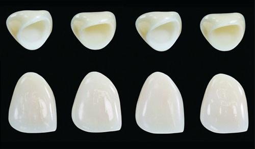 bọc răng sứ bao lâu thì hỏng