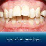 Bọc răng sứ cho răng cửa bị hô vẩu – Giải pháp cho nụ cười tự tin, tỏa sáng