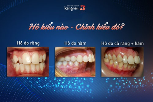 bọc răng sứ chữa hô