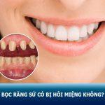 Bọc răng sứ có bị hôi miệng không? Nguyên nhân & Cách xử lý