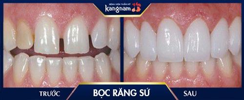 răng sứ thường có bền không