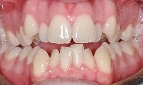 cách xử lý răng cửa mọc lệch