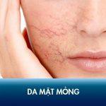 Da mặt mỏng, đỏ và nổi gân máu – Nguyên nhân và cách khắc phục