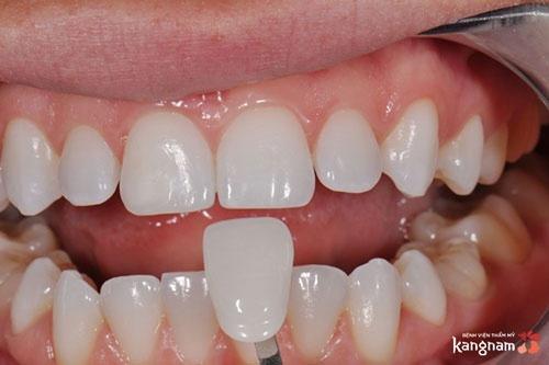 làm răng sứ thẩm mỹ ở hà nội