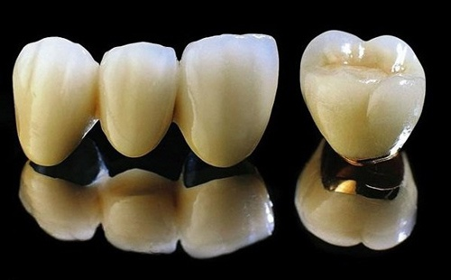 giá bọc răng sứ