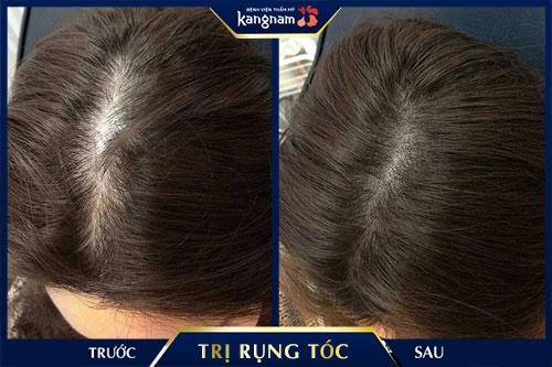 6 cách gội đầu bằng bồ kết trị rụng tóc, tóc mọc nhanh sau 2 tuần