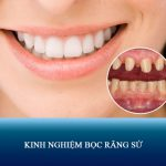 5 kinh nghiệm bọc răng sứ thẩm mỹ Đẹp – An Toàn không phải ai cũng biết