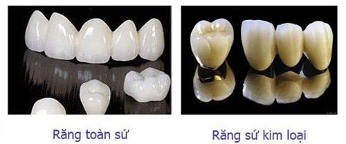 nên bọc răng sứ hay kim loại